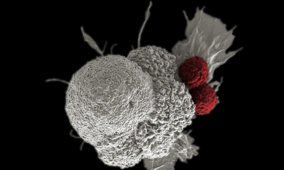Shown here is a pseudo-colored scanning electron micrograph of an oral squamous cancer cell (white) being attacked by two cytotoxic T cells (red), part of a natural immune response.