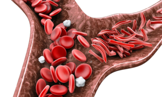 Sickle-shaped cells are not flexible and can stick to vessel walls, causing a blockage.